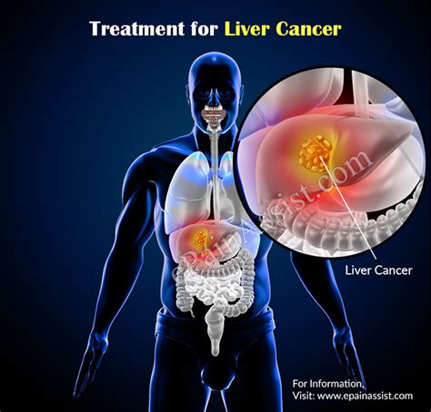 pain with liver cancer picture 10