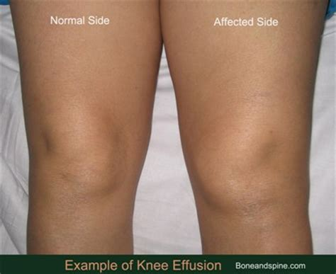 small knee joint effusion picture 2