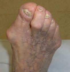 can they put you asleep for bunion surgery picture 5