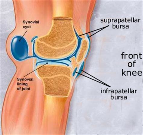 bursitis in many joints picture 13