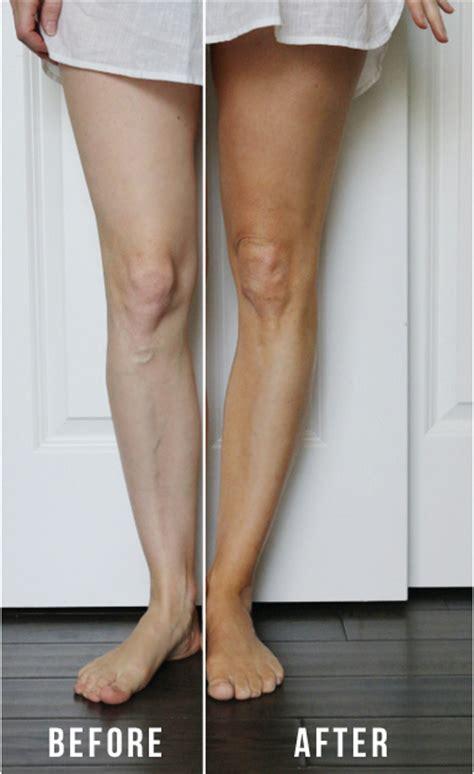 fair skin self tanners picture 10