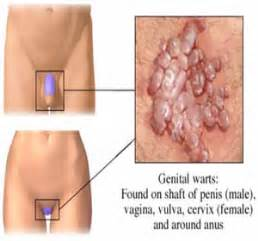 ually transmitted disease genital warts picture 2