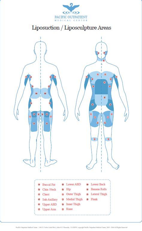 breast augmentation in the area picture 9