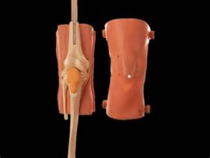 arthroscopy of knee joint picture 6