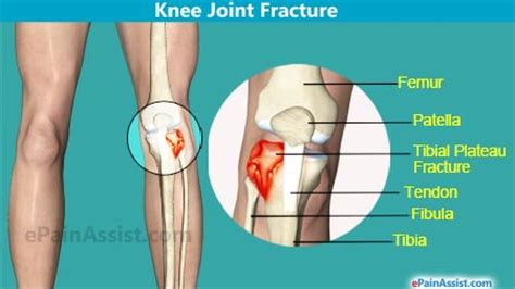 joint effusion of the knee picture 6