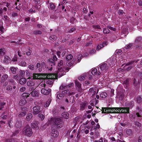 Colon cancer outcome picture 13