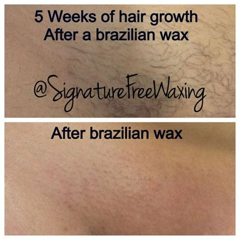 waxing hair not growing picture 5