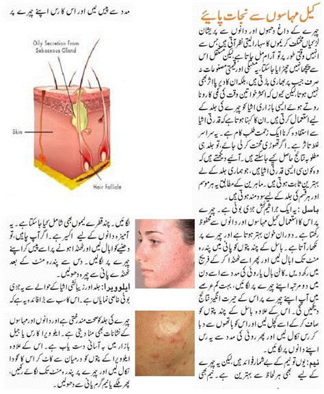 acne remove in urdu tips zubauda picture 6