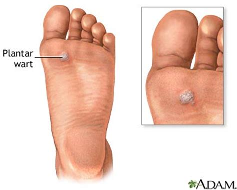 piccture of plantar warts picture 2