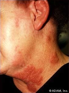 joint pain with herpes breakout picture 3