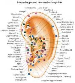 Locations of weight loss ear staple picture 11