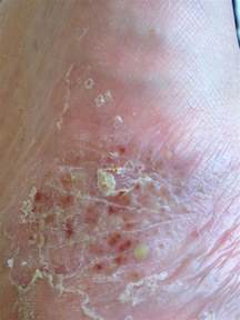 skin infection picture 9