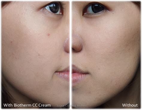 acne after hysterectomy picture 19