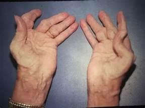 arthrites diet picture 14