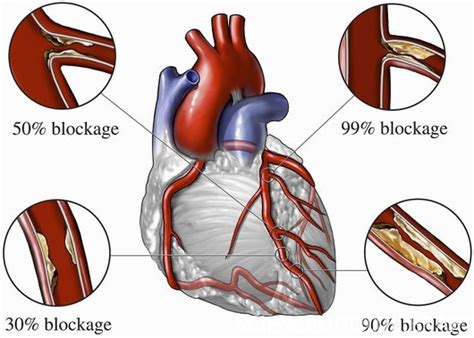 sakit sa blood pressure picture 11