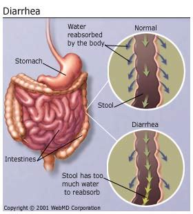 bowel cancer symptoms disorder picture 2