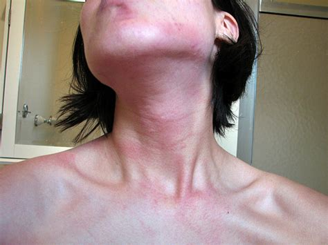 cold and thyroid problems picture 9