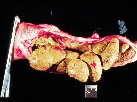 severe mega colon picture 7