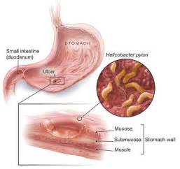 cause of bacterial infection in the stomach picture 14