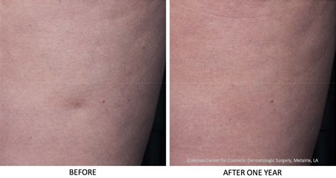 cellulite treatment san diego picture 6