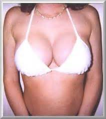 breast implant erotic fiction picture 6