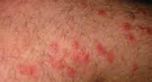 hiv rash pictures picture 5