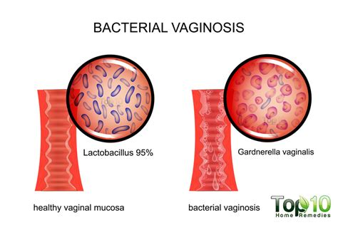 natural cures for bacterial vaginosis picture 6