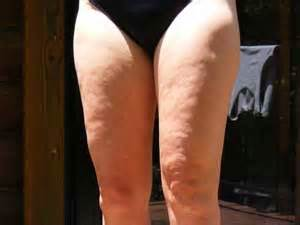 love your legs cellulite reduction affiliate program picture 3