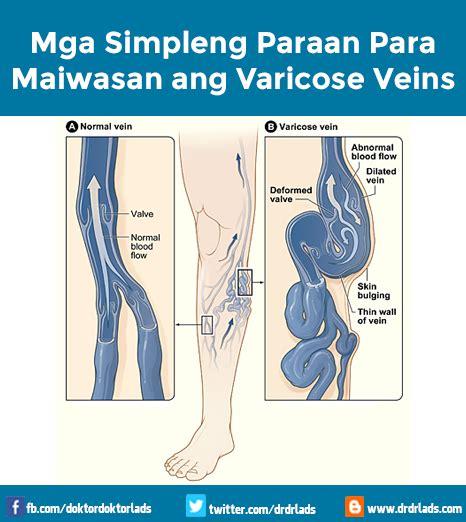 anu ang gamot para mawala ang varicous veins picture 1
