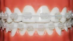 clear teeth brace picture 14