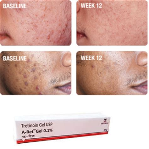 where can i buy maxoderm cream cheap picture 9
