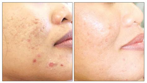 acne scarring treatment picture 14