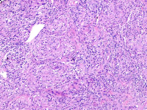 cause for lesions on your liver picture 3