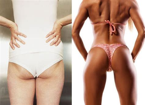 fat ladies with cellulite having picture 2
