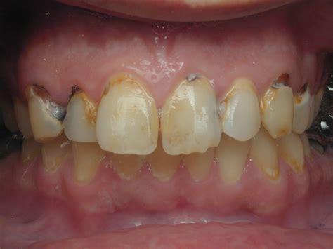 cavaties teeth picture 17