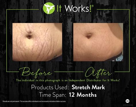 dmae work on stretch marks picture 1