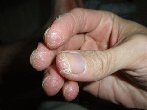 chronic joint pain picture 10