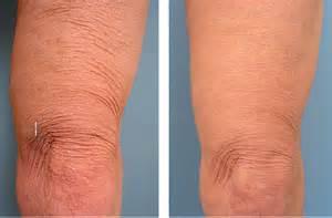 skin tightening 2014 abdomen picture 19