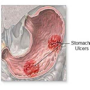 diet recommended for ulcers picture 15