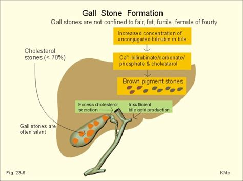 cholesterol stone gall bladder picture 10