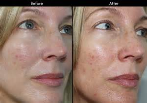 bare minerals acne picture 6