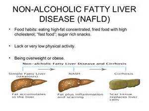 symptoms of a fatty liver picture 2