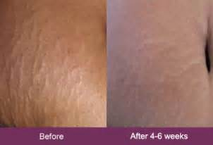 before and after burning stretch marks picture 6