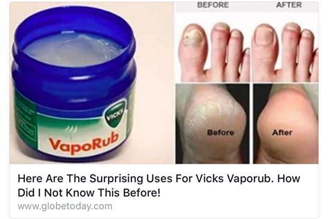 vicks vapor rub cystic acne picture 3