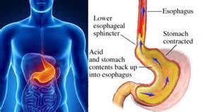 what causes acid indigestion calcium or magnesium picture 12