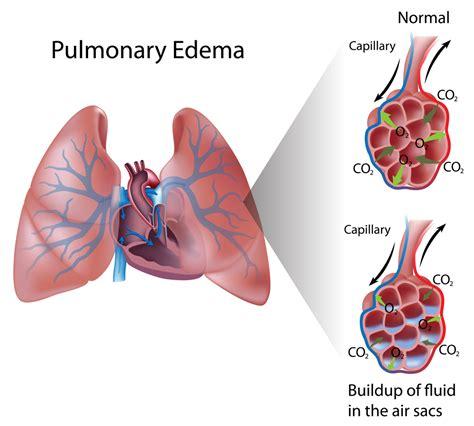 Respirator blood pressure picture 9
