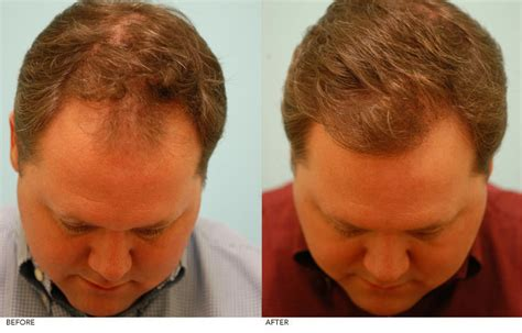 proscar hair growth picture 11