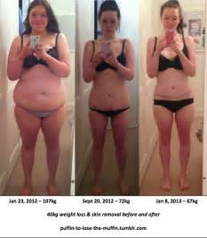 laxitives and weight loss picture 2