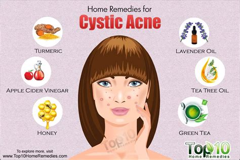 treating cystic acne picture 2