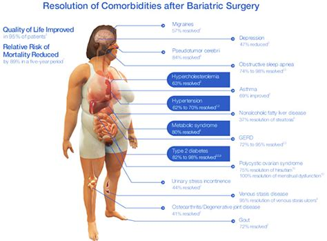 bariatrics weight loss picture 2
